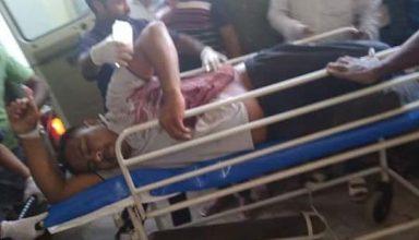 इस्लामपुर के प्रखंड प्रमुख के पति को मारी गई गोली